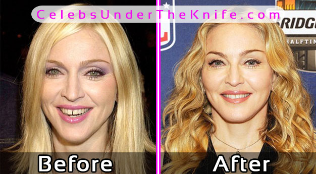 Madonna Plastic Surgery Pics – Before After