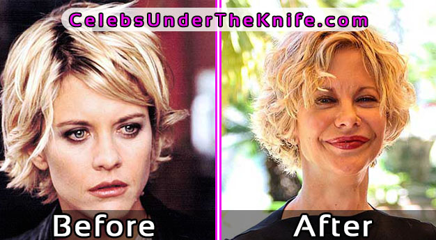 Meg Ryan - Plastic Surgery Disaster Photos