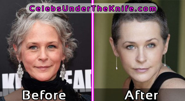 Melissa McBride Photos – Plastic Surgery Before and After