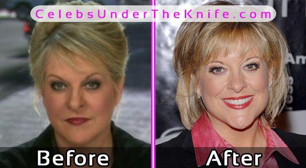 Nancy Grace Plastic Surgery Photos Before After