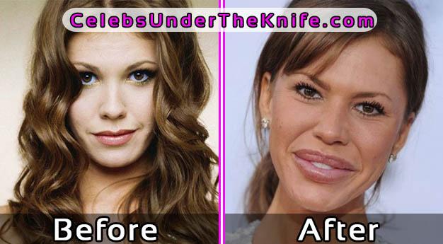 Nikki Cox Lip Filler Gone Wrong Before After Photos