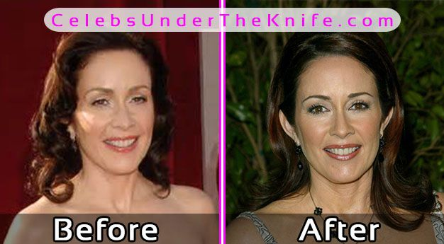 Patricia Heaton Plastic Surgery Photos Before After