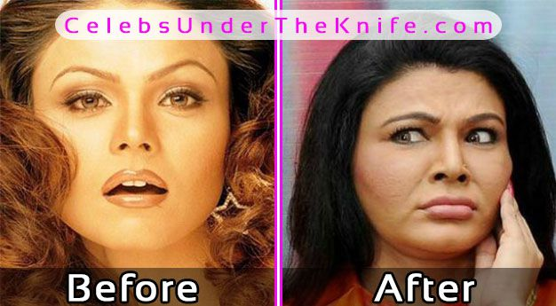 Rakhi Sawant Plastic Surgery Before After Photos