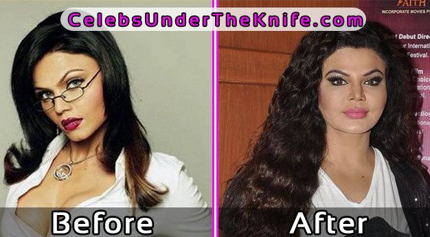 Rakhi Sawant Bollywood Actress Surgery Gone Wrong