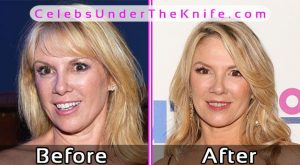 Ramona Singer Photos Before After Plastic Surgery