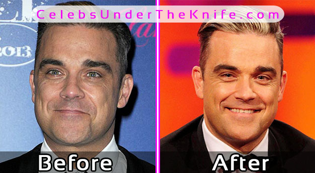 Robbie Williams Plastic Surgery? Before and After Photos