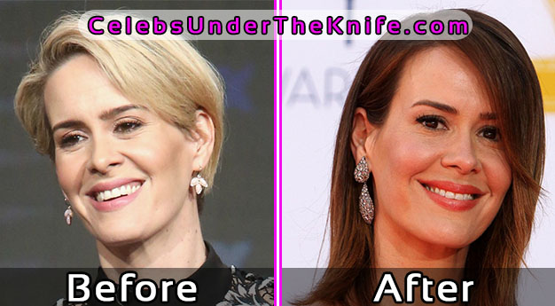 Sarah Paulson Plastic Surgery Pics? Before and After
