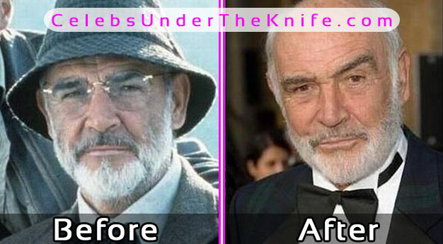 Sean Connery Before and After Plastic Surgery? Photos