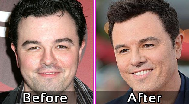 Seth MacFarlane Plastic Surgery? Before and After Photos