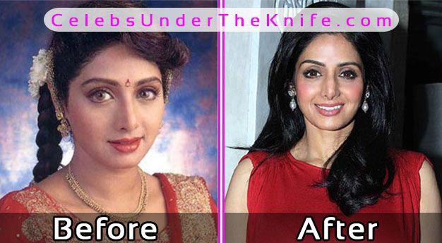 Sridevi Before After Plastic Surgery Pics