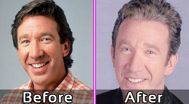 Tim Allen Plastic Surgery Photos – Before and After