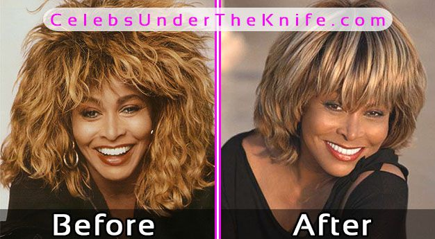 Tina Turner Plastic Surgery Before After Photos