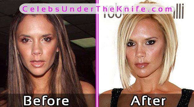 Victoria Beckham Before After Photos
