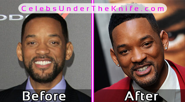 Will Smith Plastic Surgery Before After