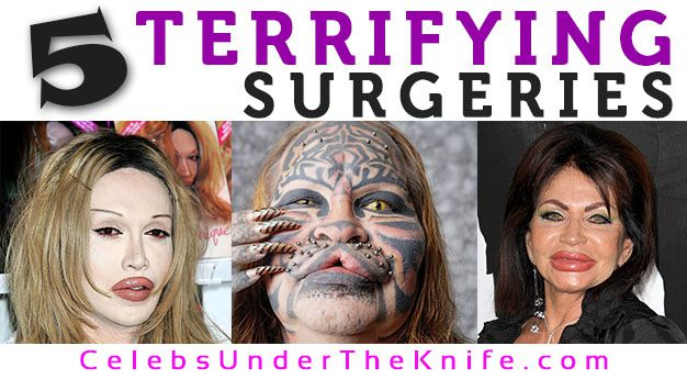 5 Terrifying Plastic Surgery Before After Photos