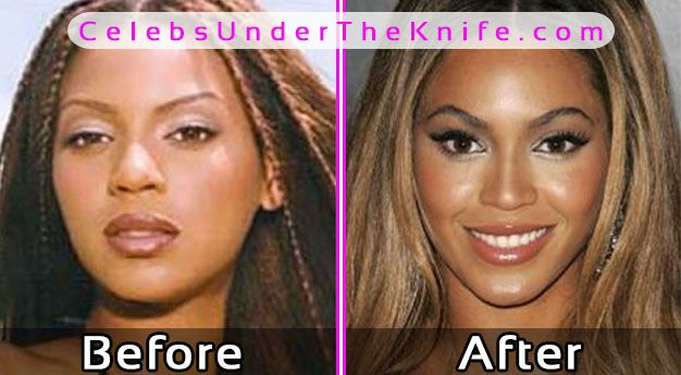 Beyonce Plastic Surgery Photos Before After