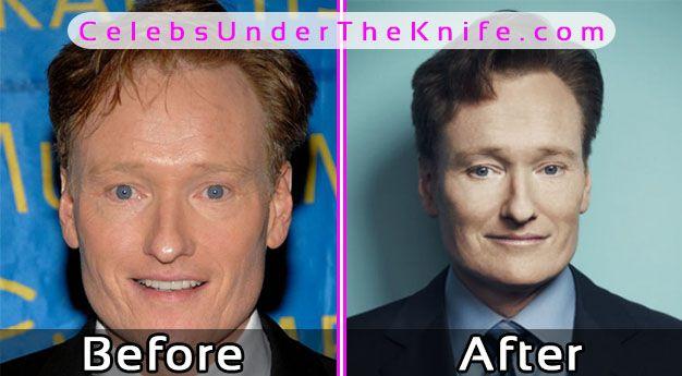 Conan O'Brien Plastic Surgery Photos Before After