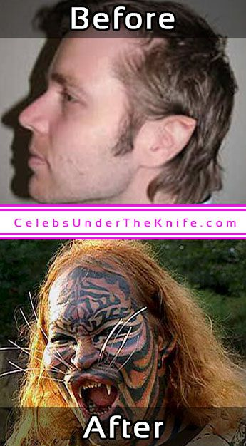 Dennis Avner Catman Plastic Surgery Before After
