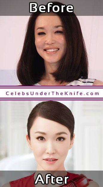 Fann Wong Photos Cosmetic Surgery