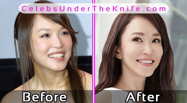 Fann Wong Plastic Surgery? Before After Photos