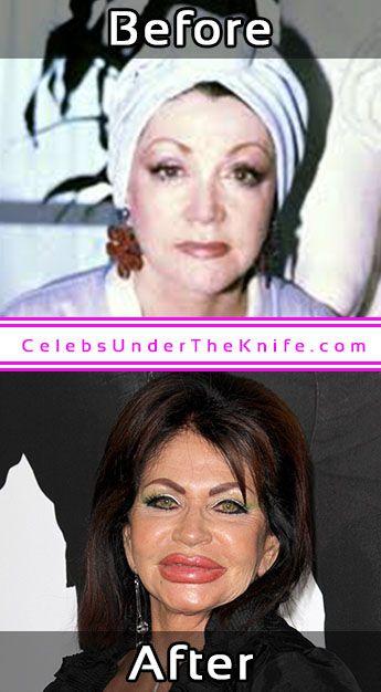 Jackie Stallone Plastic Surgery Photos