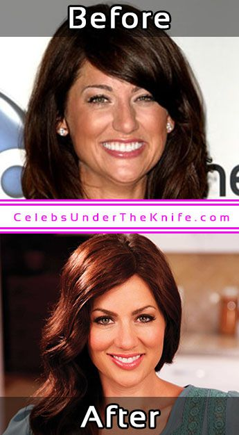 Jillian Harris Photos Cosmetic Surgery