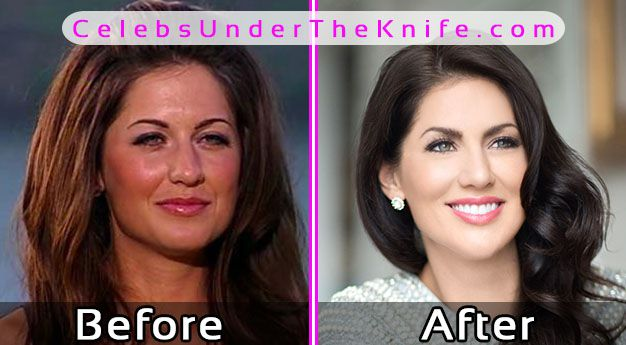 Jillian Harris Plastic Surgery Photos Before After
