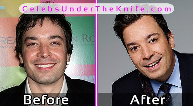 Jimmy Fallon Photos Before After Plastic Surgery