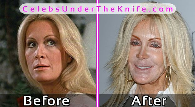Joan Van Ark Pics Cosmetic Surgery Before After