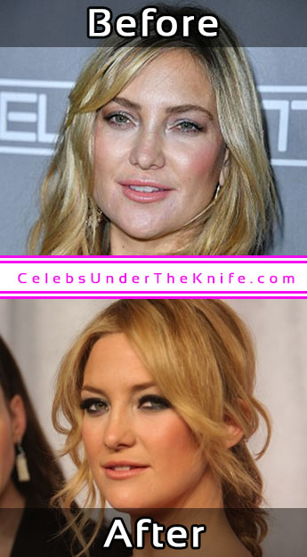 Kate Hudson Photos Cosmetic Surgery