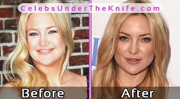 Kate Hudson Cosmetic Surgery Photos Before After