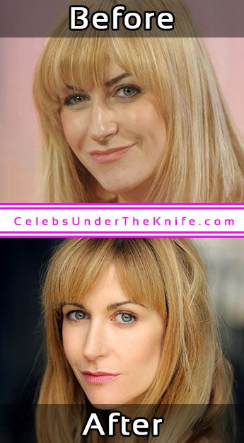 Katherine Kelly Pics Cosmetic Surgery