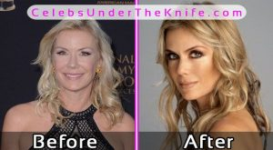 Katherine Kelly Plastic Surgery Photos Before After