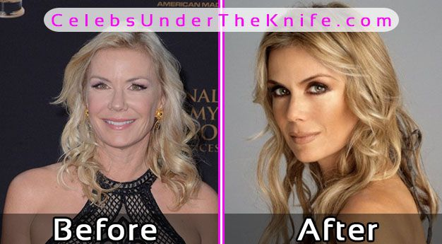 Katherine Kelly Plastic Surgery Pics Before After