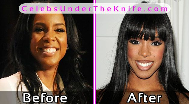 Kelly Rowland Plastic Surgery Photos Before After