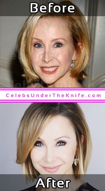 Lisa Breckenridge Plastic Surgery Photos Before After