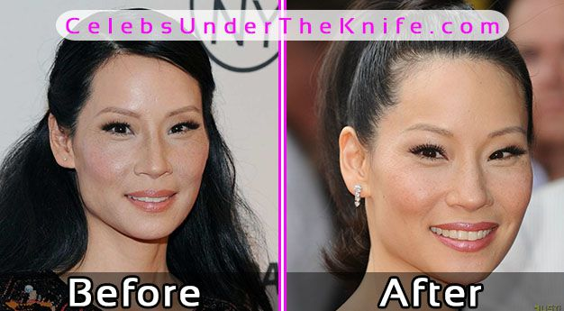 Lucy Liu Plastic Surgery Before After Photos