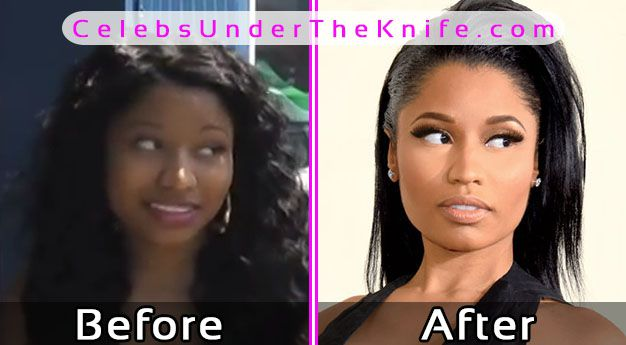 Nicki Minaj Before Photos + After Plastic Surgery