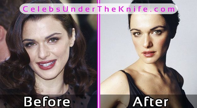 Rachel Weisz Plastic Surgery Photos Before After