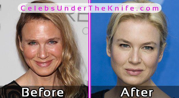 Renée Zellweger Photos Before After Plastic Surgery