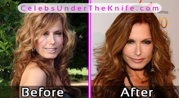 Tracey Bregman Photos Before After Plastic Surgery