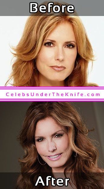 Tracey Bregman Surgery Before After Photos