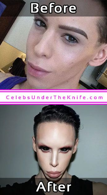 Vinny Ohh Alien Photos Before After