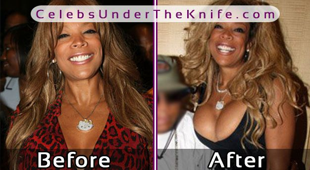 Wendy Williams' Boob Job! Take A Look At Her Before + After Photos