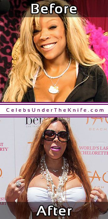 Wendy Williams Photos Before After