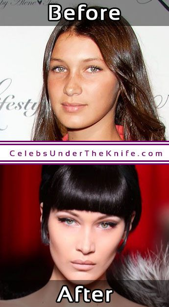 Bella Hadid Cosmetic Procedure Nose Job Photo