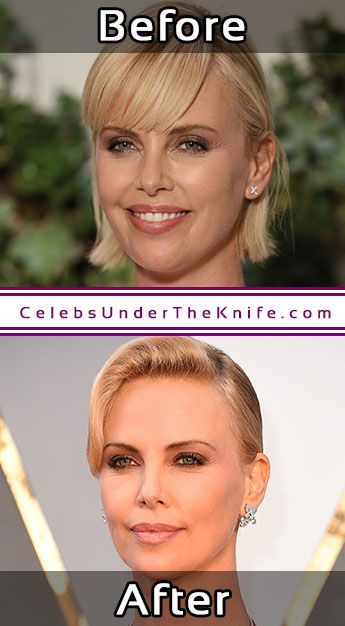 Charlize Theron Plastic Surgery Photos Before After
