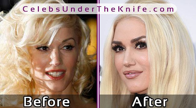 Gwen Stefani Before After Surgery Pics