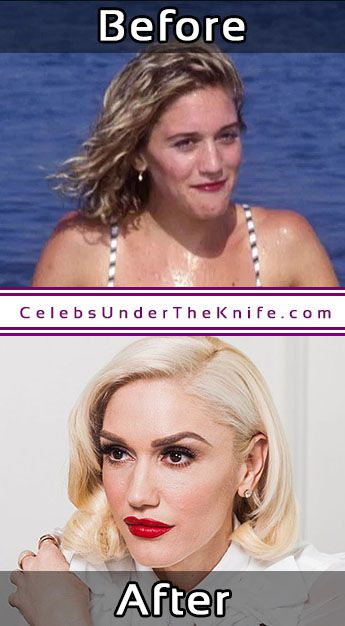 Gwen Stefani Then Now Plastic Surgeries
