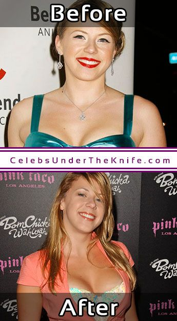Jodie Sweetin Before After Plastic Surgery